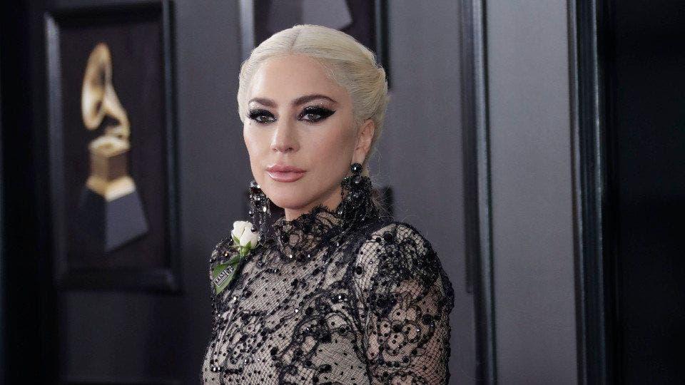 Quieres Ver A Lady Gaga Antes De Operarse La Cara Nariz Dientes Párpados Y Pómulos Nuevos
